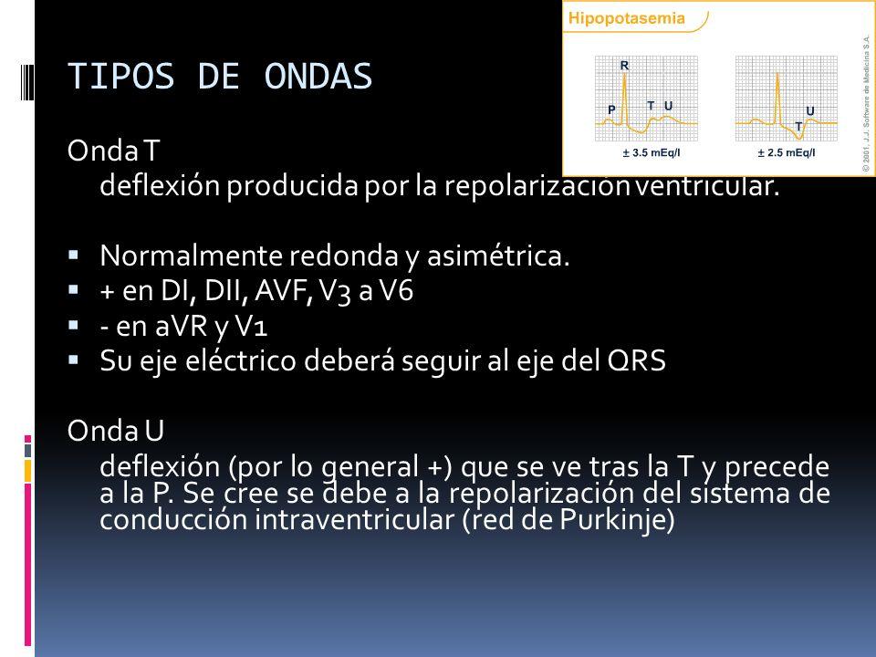 TIPOS DE ONDAS Onda T deflexión producida por la repolarización ventricular. Normalmente redonda y asimétrica. + en DI, DII, AVF, V3 a V6 - en aVR y V