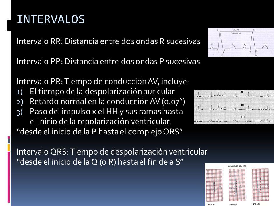 INTERVALOS Intervalo RR: Distancia entre dos ondas R sucesivas Intervalo PP: Distancia entre dos ondas P sucesivas Intervalo PR: Tiempo de conducción AV, incluye: 1) El tiempo de la despolarización auricular 2) Retardo normal en la conducción AV (0.07) 3) Paso del impulso x el HH y sus ramas hasta el inicio de la repolarización ventricular.
