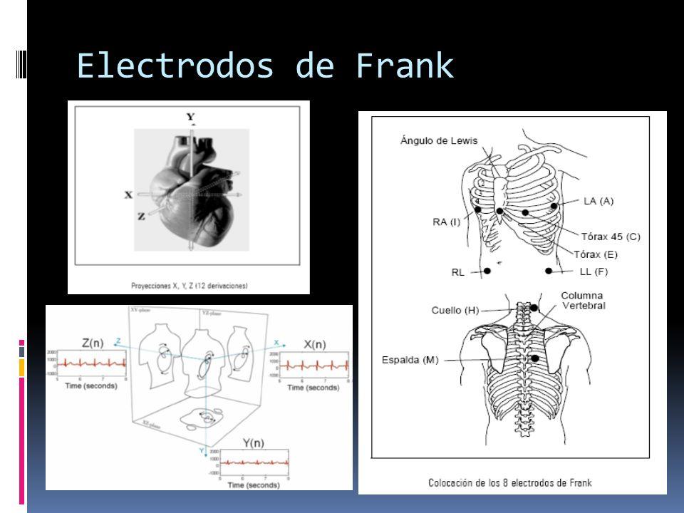 Electrodos de Frank