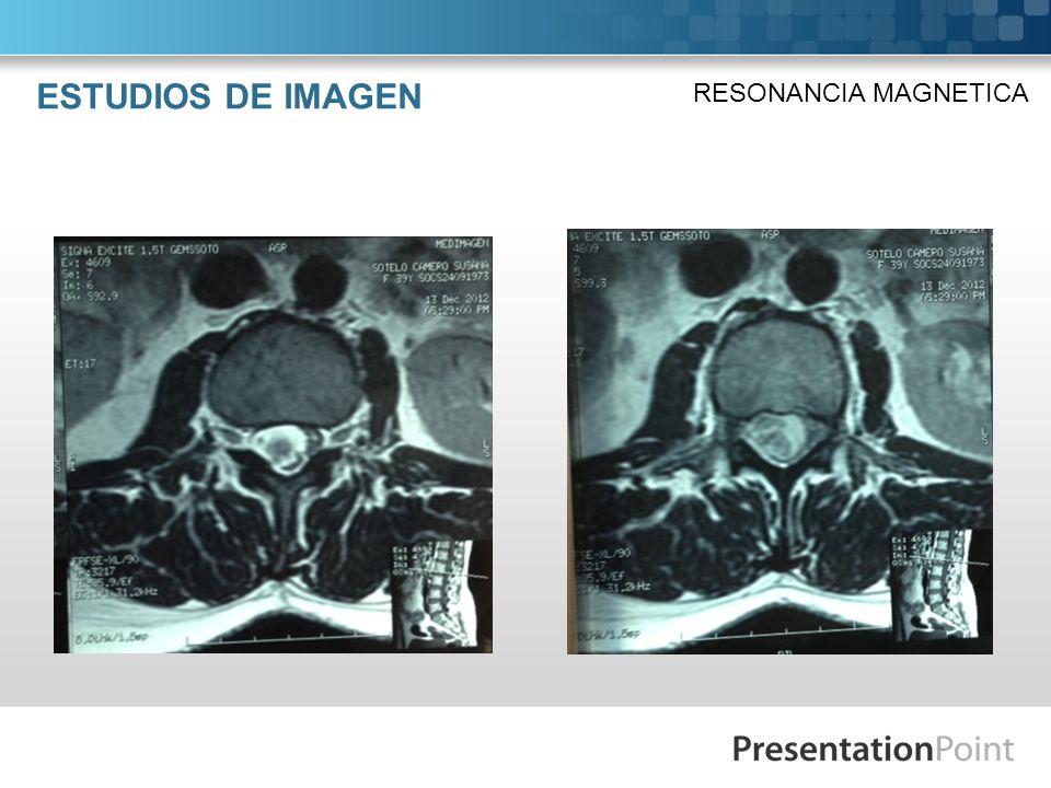 ESTUDIOS DE IMAGEN RESONANCIA MAGNETICA