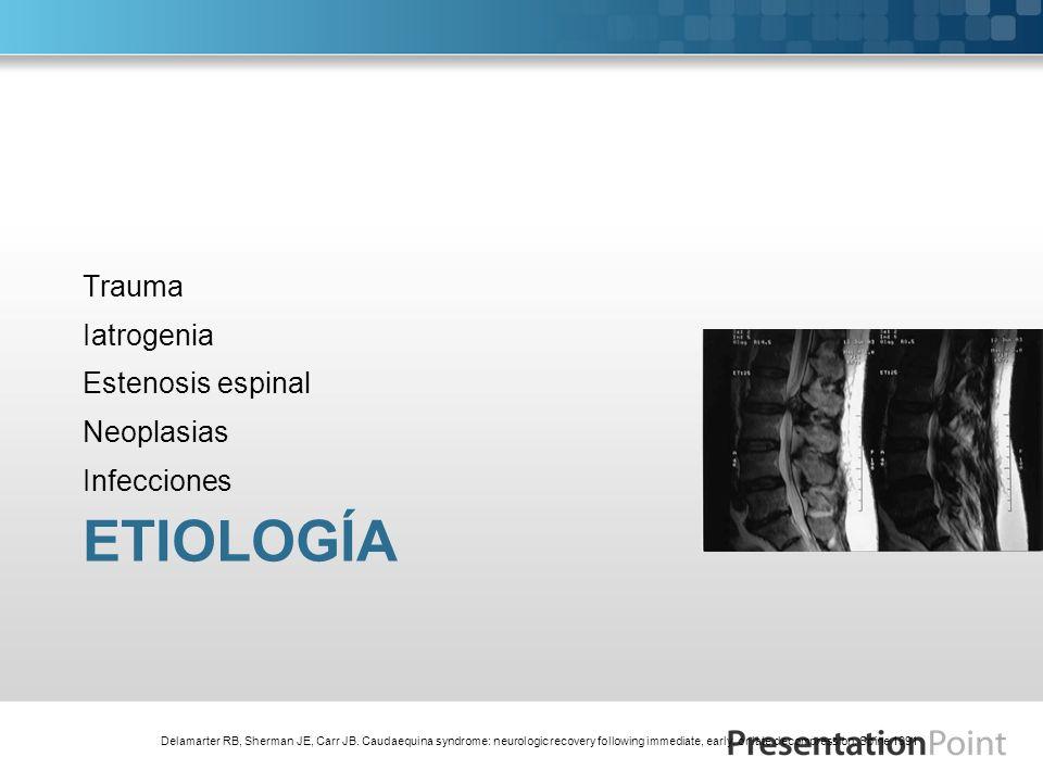 ETIOLOGÍA Trauma Iatrogenia Estenosis espinal Neoplasias Infecciones Delamarter RB, Sherman JE, Carr JB. Caudaequina syndrome: neurologic recovery fol