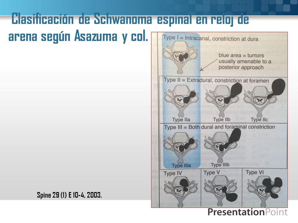 Clasificación de Schwanoma espinal en reloj de arena según Asazuma y col. Spine 29 (1) E 10-4, 2003.
