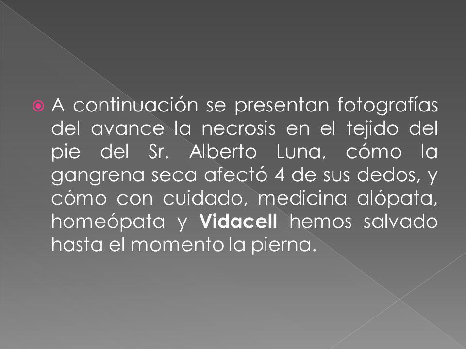 Si Vidacell es capaz de hacer esto en una persona de 87 años, hipertensa y diabética por más de 10 años y circulación casi nula.