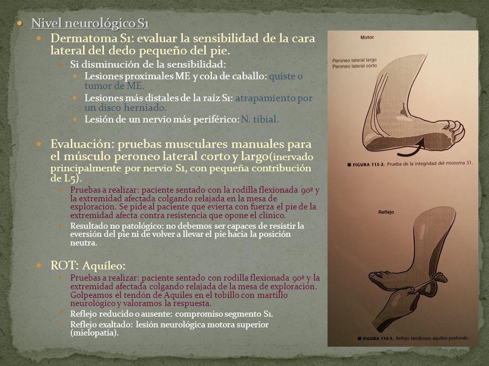 Nivel neurológico S1 Nivel neurológico S1 Dermatoma S1: evaluar la sensibilidad de la cara lateral del dedo pequeño del pie. Si disminución de la sens
