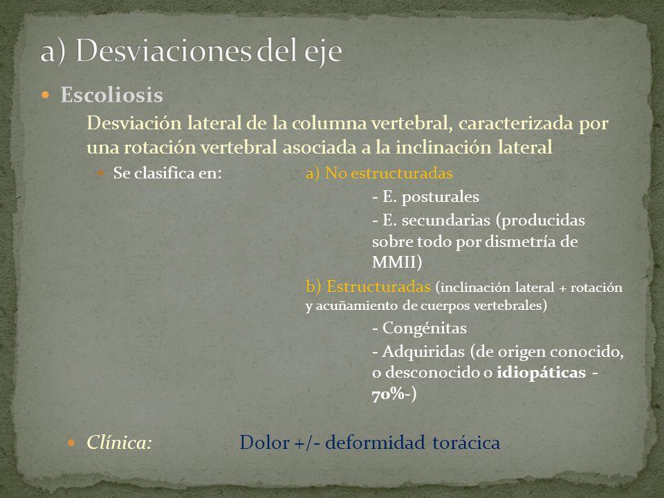 Escoliosis Desviación lateral de la columna vertebral, caracterizada por una rotación vertebral asociada a la inclinación lateral Se clasifica en:a) N