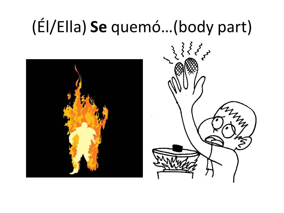 (Él/Ella) Se quemó…(body part)