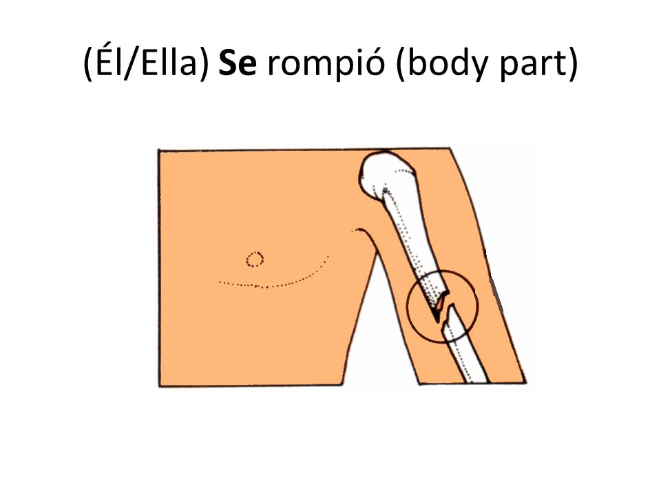 (Él/Ella) Se rompió (body part)