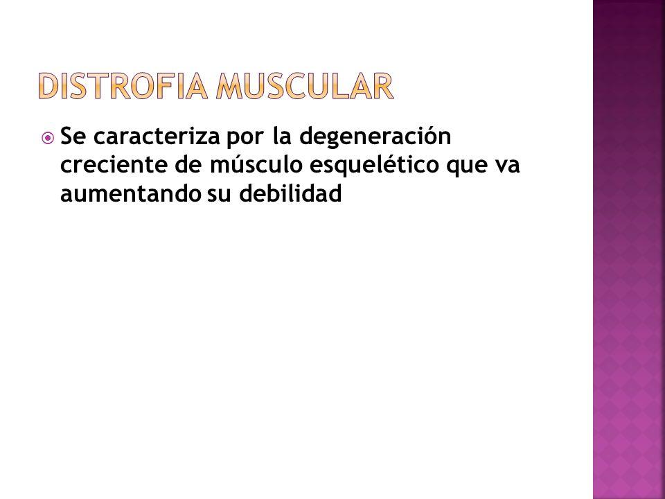 Se caracteriza por la degeneración creciente de músculo esquelético que va aumentando su debilidad