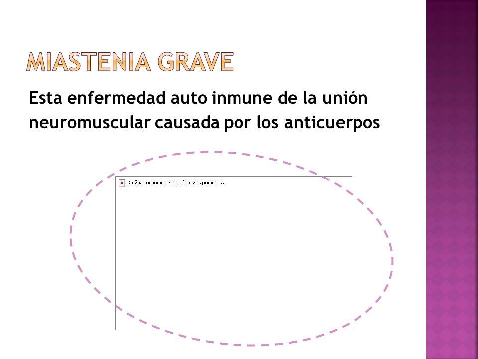 Esta enfermedad auto inmune de la unión neuromuscular causada por los anticuerpos