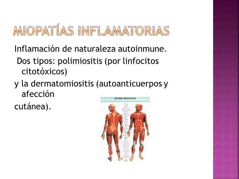 Inflamación de naturaleza autoinmune.