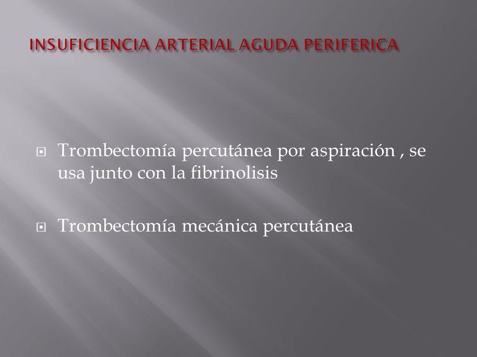 Trombectomía percutánea por aspiración, se usa junto con la fibrinolisis Trombectomía mecánica percutánea