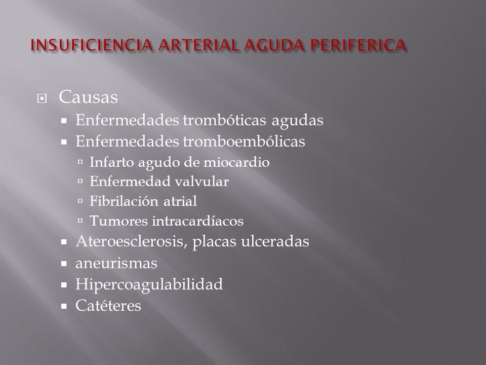 Causas Enfermedades trombóticas agudas Enfermedades tromboembólicas Infarto agudo de miocardio Enfermedad valvular Fibrilación atrial Tumores intracardíacos Ateroesclerosis, placas ulceradas aneurismas Hipercoagulabilidad Catéteres
