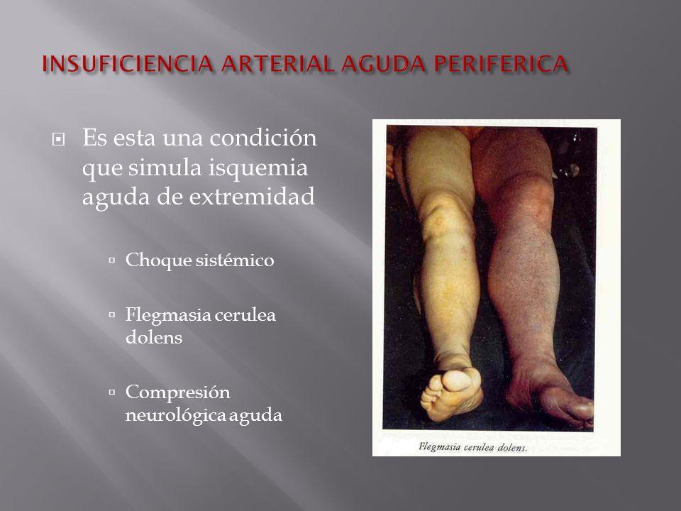 Es esta una condición que simula isquemia aguda de extremidad Choque sistémico Flegmasia cerulea dolens Compresión neurológica aguda