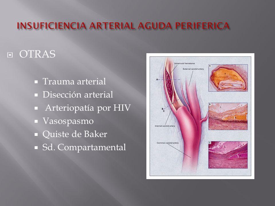 Trauma arterial Disección arterial Arteriopatía por HIV Vasospasmo Quiste de Baker Sd.