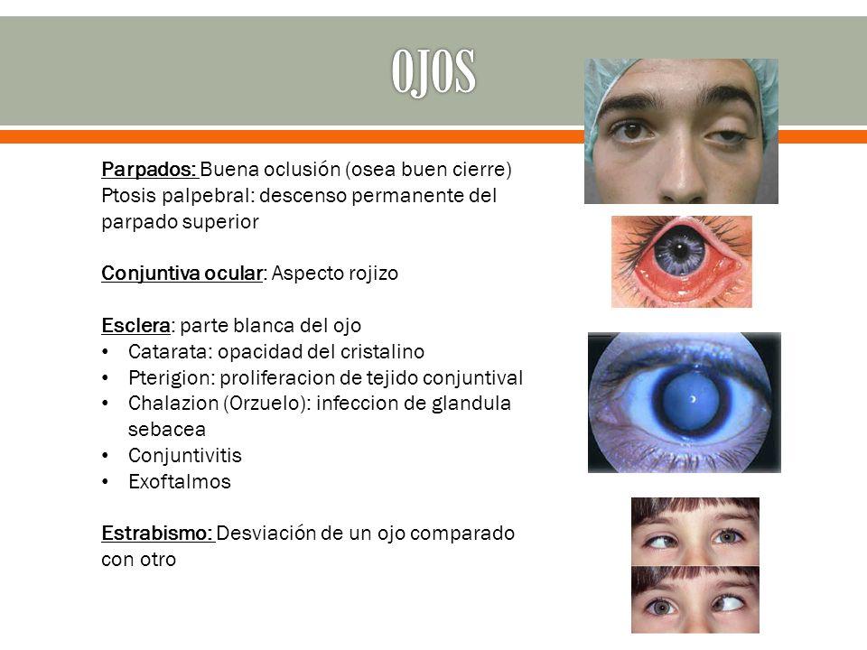 FORMA DE LAS PUPILAS Isocoria: Pupilas de igual tamaño Anisocoria: Cuando las pupilas son de diferente tamaño Miosis: Cuando las pupilas están pequeñas (contraídas) EJEMPLO: intoxicaciones, enfermedad neurológica.