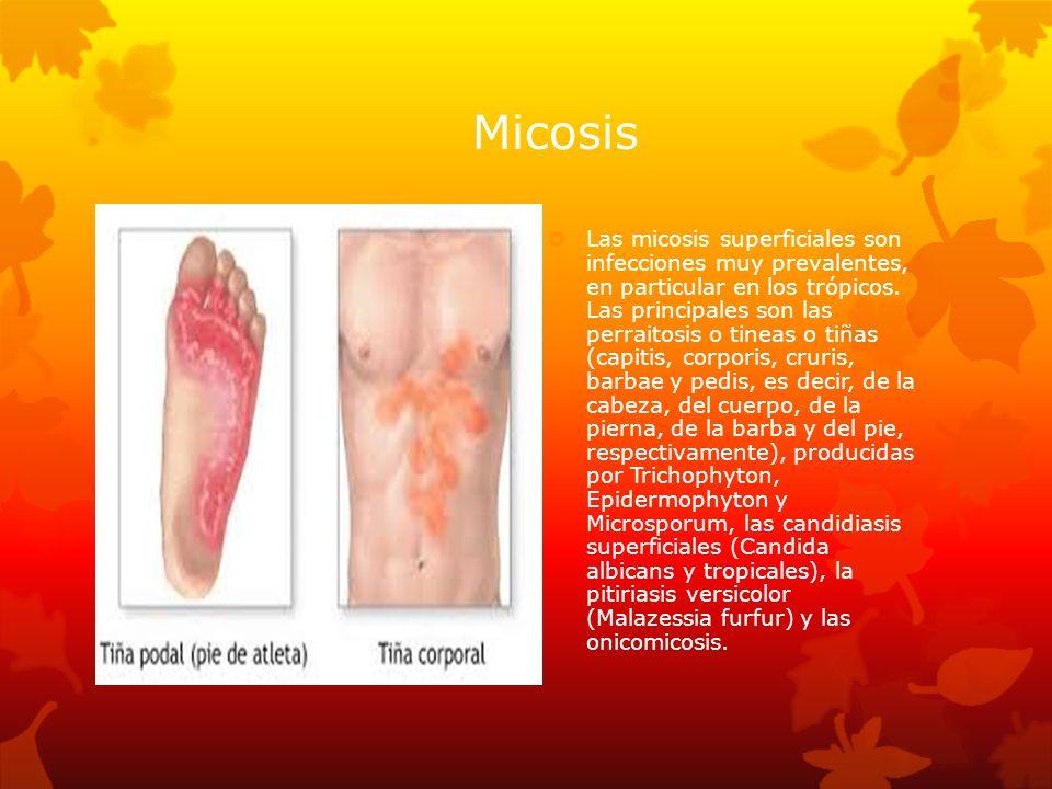 Micosis Las micosis superficiales son infecciones muy prevalentes, en particular en los trópicos. Las principales son las perraitosis o tineas o tiñas