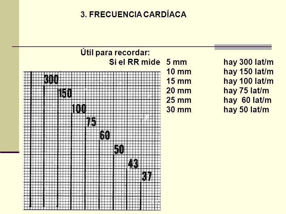 3. FRECUENCIA CARDÍACA Útil para recordar: Si el RR mide 5 mmhay 300 lat/m 10 mmhay 150 lat/m 15 mm hay 100 lat/m 20 mm hay 75 lat/m 25 mmhay 60 lat/m