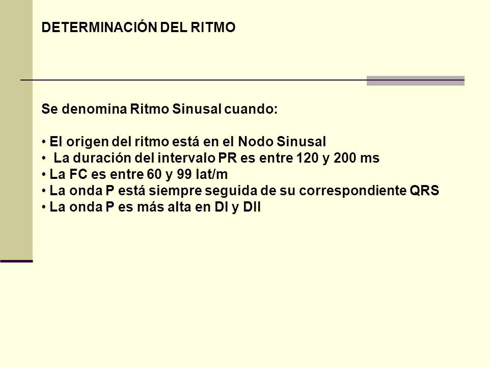 DETERMINACIÓN DEL RITMO Se denomina Ritmo Sinusal cuando: El origen del ritmo está en el Nodo Sinusal La duración del intervalo PR es entre 120 y 200
