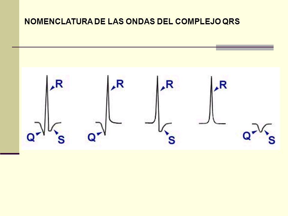 NOMENCLATURA DE LAS ONDAS DEL COMPLEJO QRS