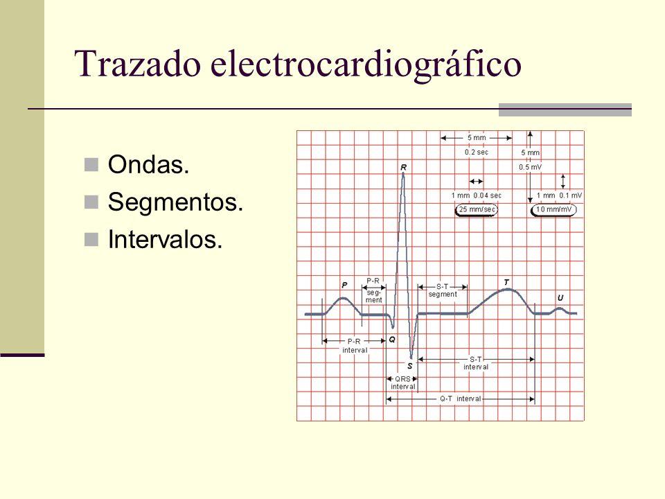 Trazado electrocardiográfico Ondas. Segmentos. Intervalos.