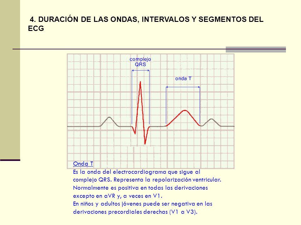 Onda T Es la onda del electrocardiograma que sigue al complejo QRS. Representa la repolarización ventricular. Normalmente es positiva en todas las der