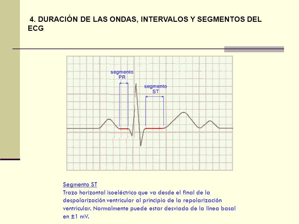Segmento ST Trazo horizontal isoeléctrico que va desde el final de la despolarización ventricular al principio de la repolarización ventricular. Norma
