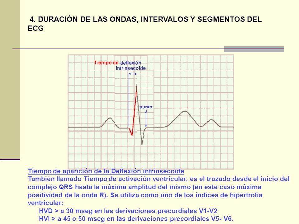 Tiempo de aparición de la Deflexión intrinsecoide También llamado Tiempo de activación ventricular, es el trazado desde el inicio del complejo QRS has