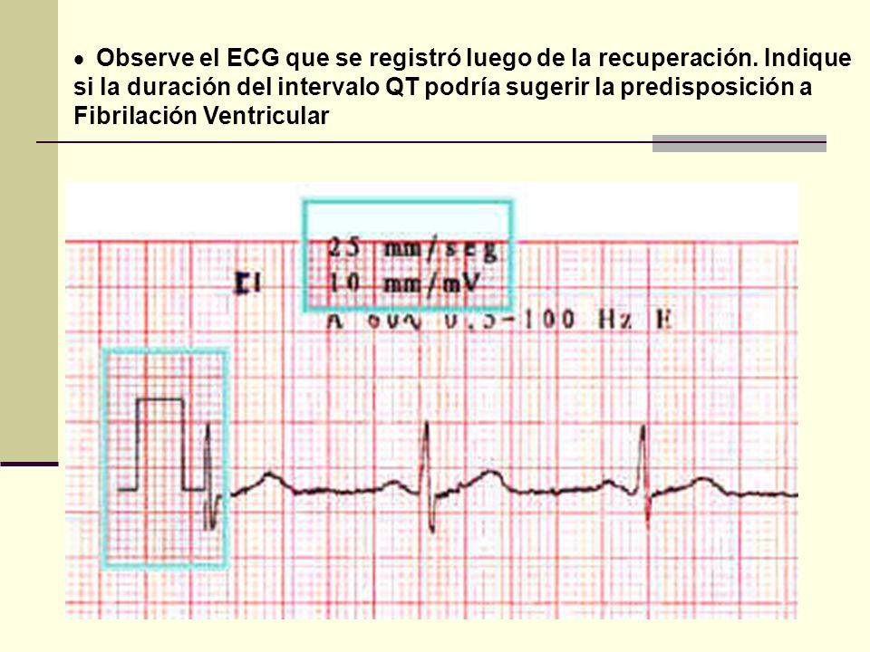 Observe el ECG que se registró luego de la recuperación. Indique si la duración del intervalo QT podría sugerir la predisposición a Fibrilación Ventri