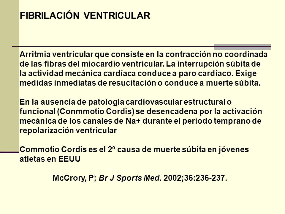 FIBRILACIÓN VENTRICULAR Arritmia ventricular que consiste en la contracción no coordinada de las fibras del miocardio ventricular. La interrupción súb