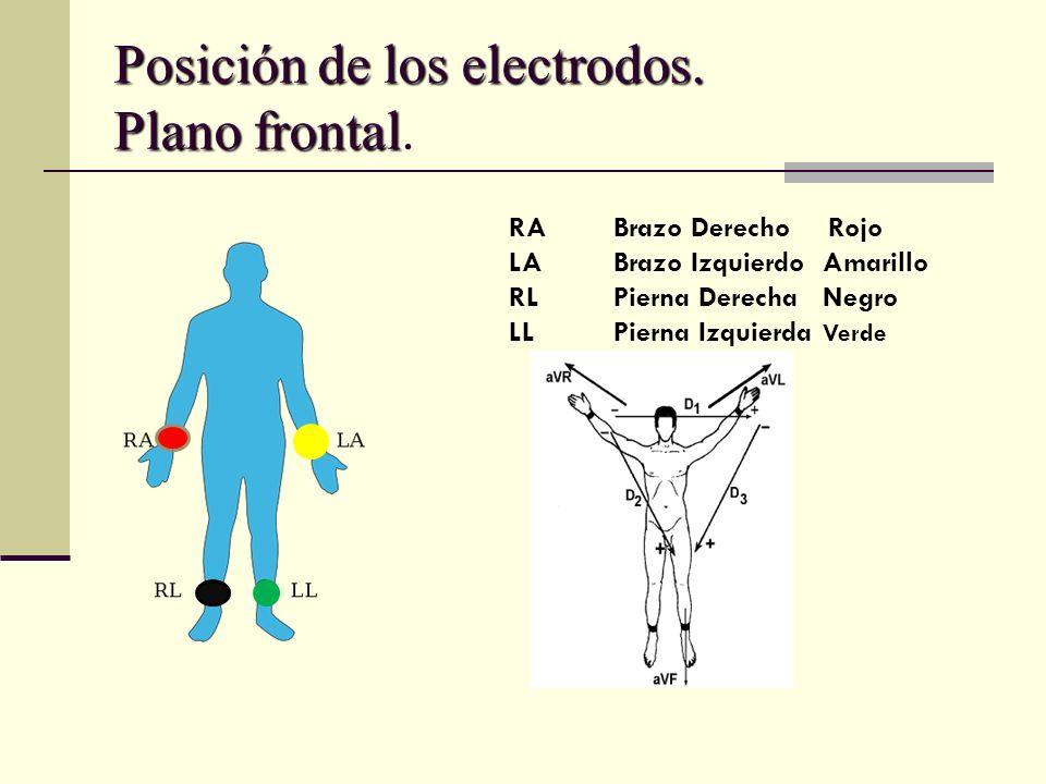Posición de los electrodos. Plano frontal Posición de los electrodos. Plano frontal. RABrazo Derecho Rojo LABrazo IzquierdoAmarillo RLPierna DerechaNe