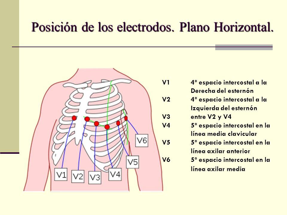 Posición de los electrodos. Plano Horizontal. V14º espacio intercostal a la Derecha del esternón V24º espacio intercostal a la Izquierda del esternón