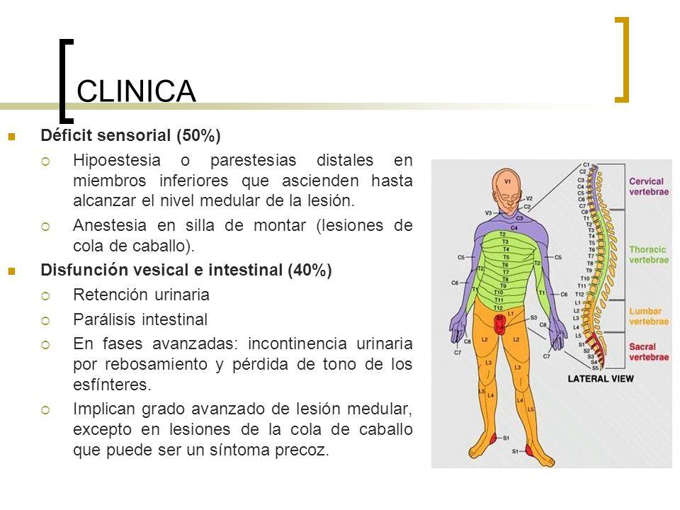 CLINICA Déficit sensorial (50%) Hipoestesia o parestesias distales en miembros inferiores que ascienden hasta alcanzar el nivel medular de la lesión.