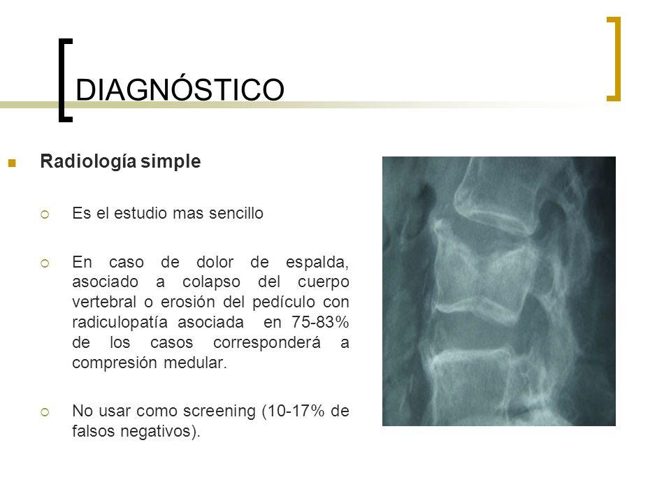 DIAGNÓSTICO Radiología simple Es el estudio mas sencillo En caso de dolor de espalda, asociado a colapso del cuerpo vertebral o erosión del pedículo c