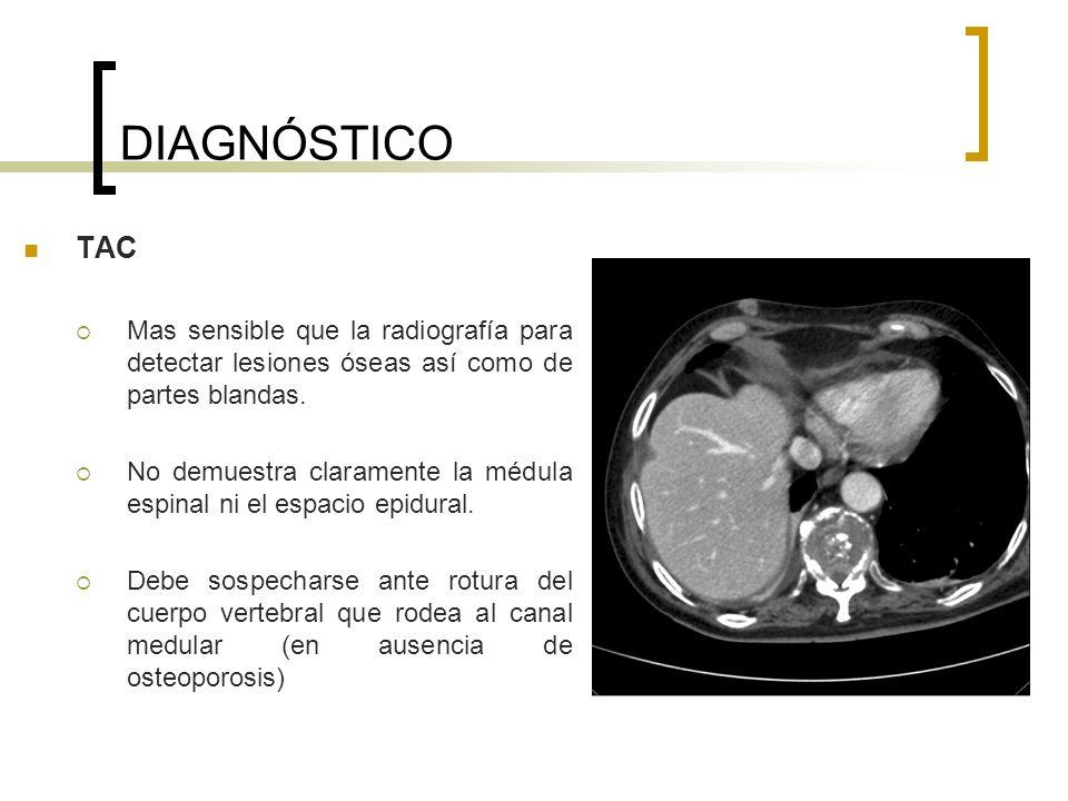 DIAGNÓSTICO TAC Mas sensible que la radiografía para detectar lesiones óseas así como de partes blandas. No demuestra claramente la médula espinal ni