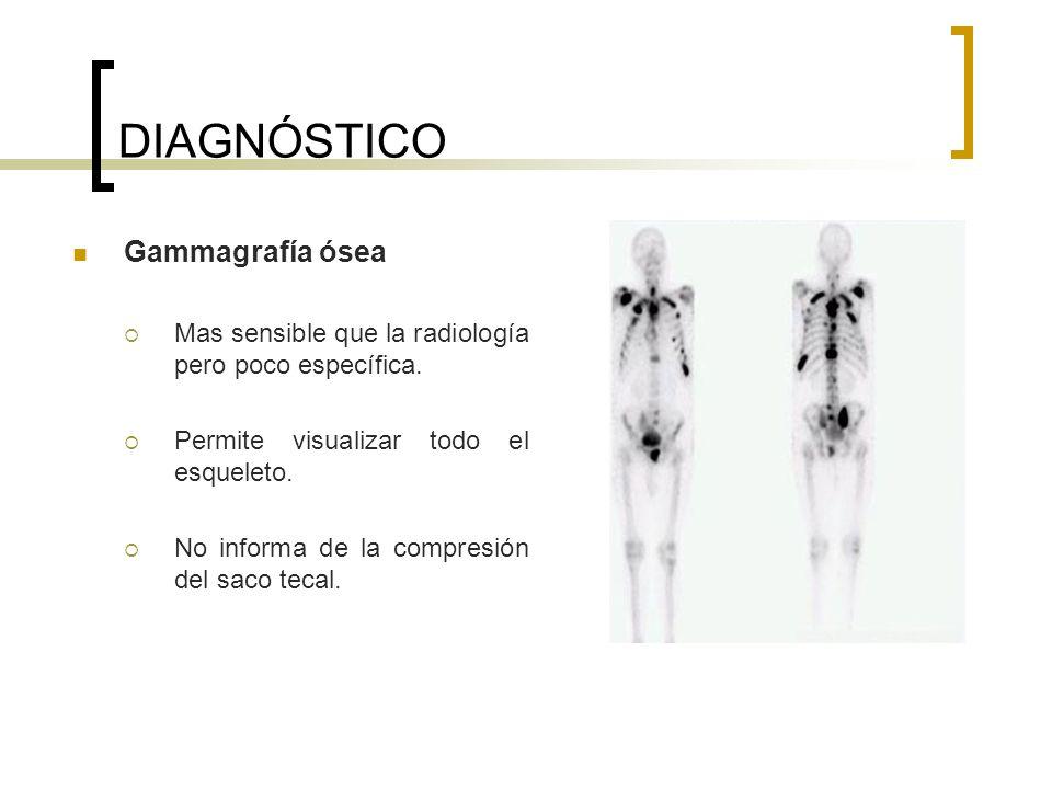 DIAGNÓSTICO Gammagrafía ósea Mas sensible que la radiología pero poco específica. Permite visualizar todo el esqueleto. No informa de la compresión de