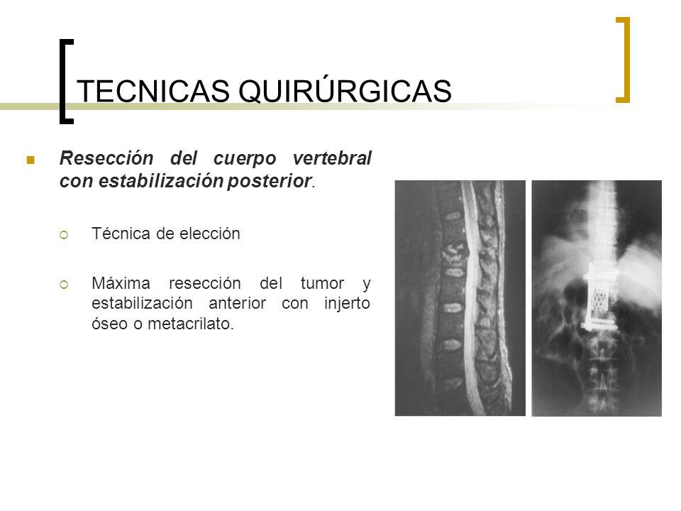 TECNICAS QUIRÚRGICAS Resección del cuerpo vertebral con estabilización posterior. Técnica de elección Máxima resección del tumor y estabilización ante
