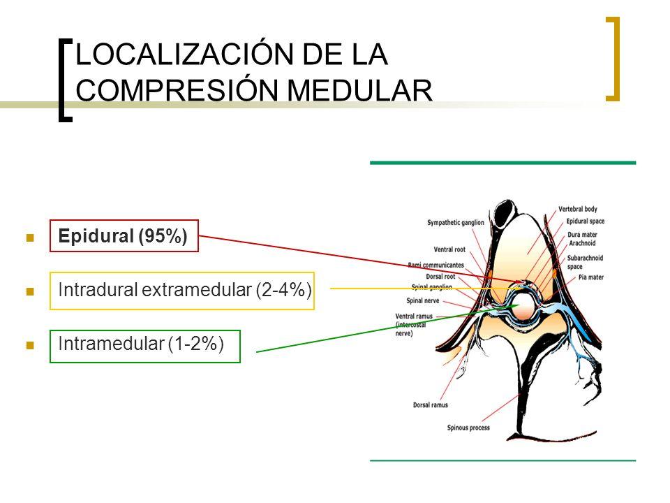 DEFINICIÓN DE SCMN EPIDURAL Compresión del saco dural y sus contenidos (médula espinal y/o cola de caballo) por una masa tumoral extradural.