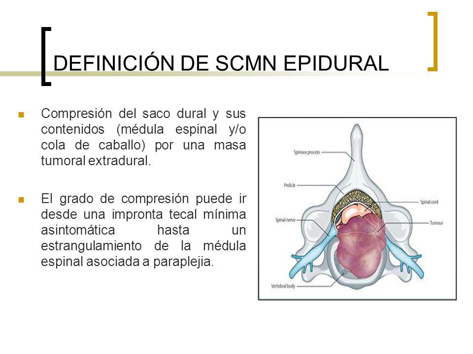 DEFINICIÓN DE SCMN EPIDURAL Compresión del saco dural y sus contenidos (médula espinal y/o cola de caballo) por una masa tumoral extradural. El grado