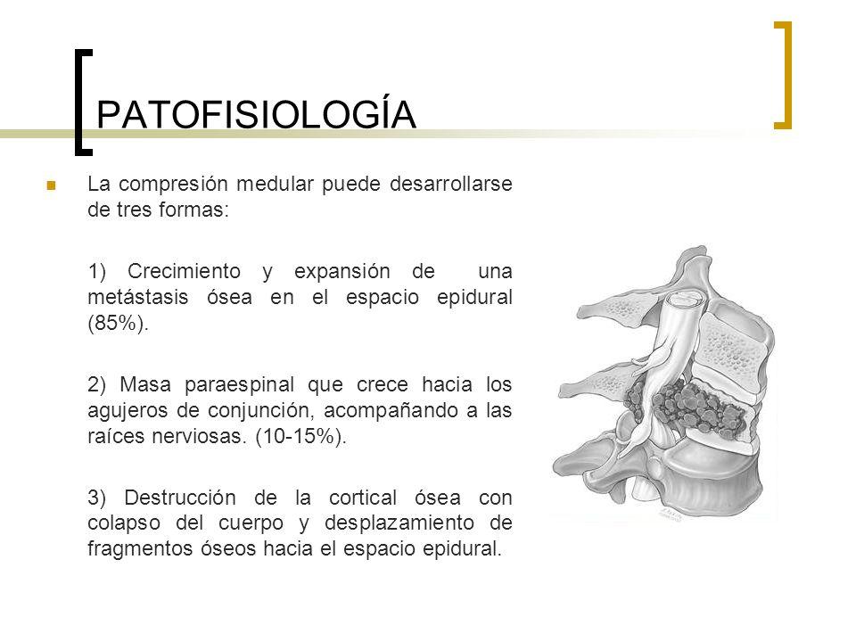 PATOFISIOLOGÍA La compresión medular puede desarrollarse de tres formas: 1) Crecimiento y expansión de una metástasis ósea en el espacio epidural (85%