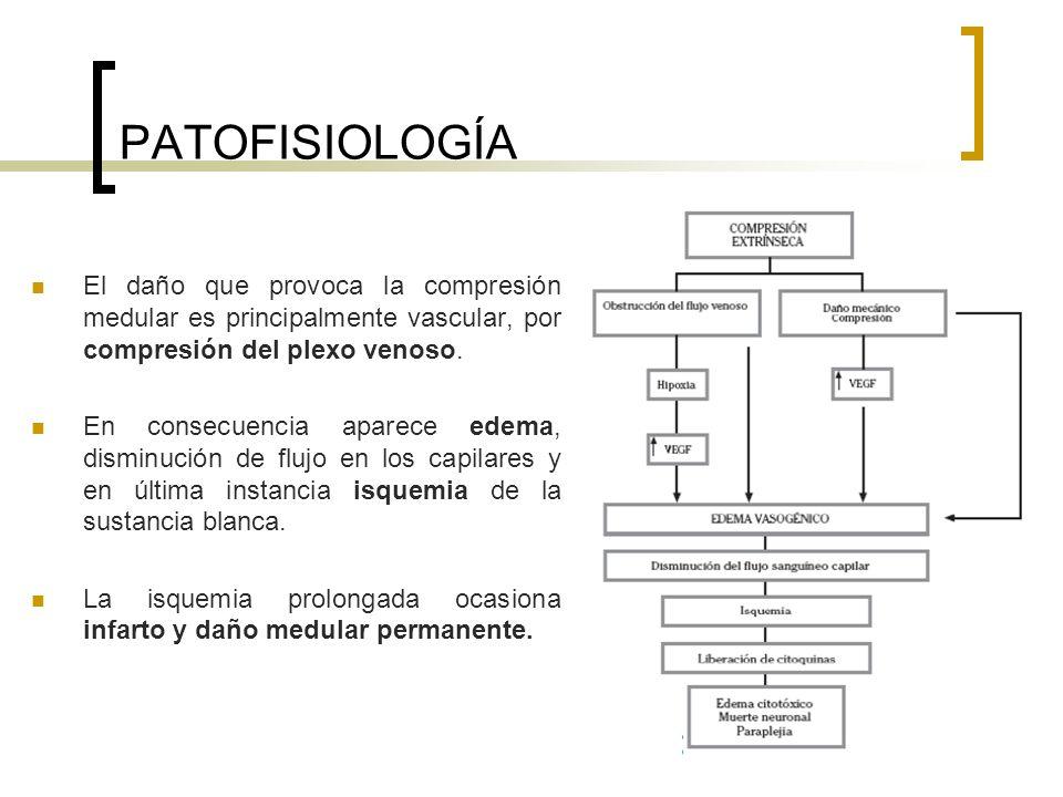PATOFISIOLOGÍA El daño que provoca la compresión medular es principalmente vascular, por compresión del plexo venoso. En consecuencia aparece edema, d