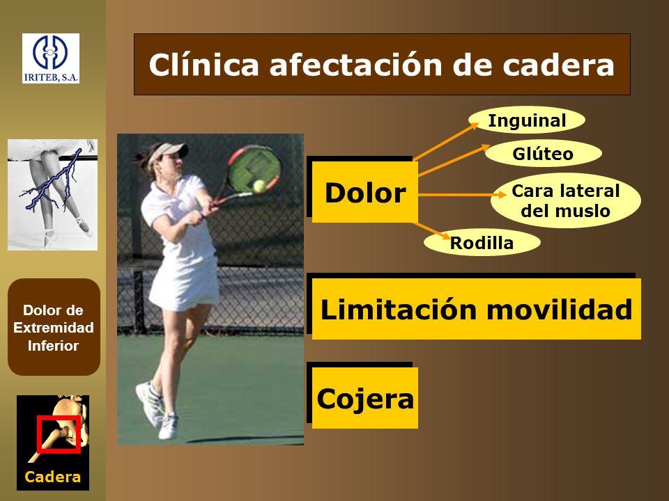 Dolor de Extremidad Inferior Glúteo Inguinal Cara lateral del muslo Cadera Clínica afectación de cadera Limitación movilidad Cojera Rodilla Dolor