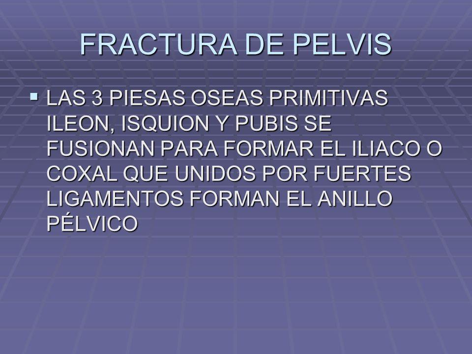 FRACTURA DE PELVIS LAS 3 PIESAS OSEAS PRIMITIVAS ILEON, ISQUION Y PUBIS SE FUSIONAN PARA FORMAR EL ILIACO O COXAL QUE UNIDOS POR FUERTES LIGAMENTOS FORMAN EL ANILLO PÉLVICO LAS 3 PIESAS OSEAS PRIMITIVAS ILEON, ISQUION Y PUBIS SE FUSIONAN PARA FORMAR EL ILIACO O COXAL QUE UNIDOS POR FUERTES LIGAMENTOS FORMAN EL ANILLO PÉLVICO