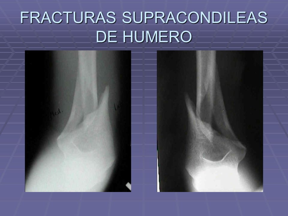 FRACTURAS SUPRACONDILEAS DE HUMERO