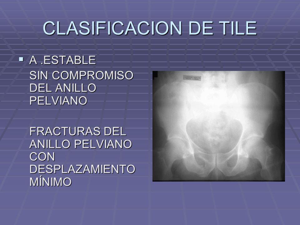 CLASIFICACION DE TILE A.ESTABLE A.ESTABLE SIN COMPROMISO DEL ANILLO PELVIANO FRACTURAS DEL ANILLO PELVIANO CON DESPLAZAMIENTO MÍNIMO