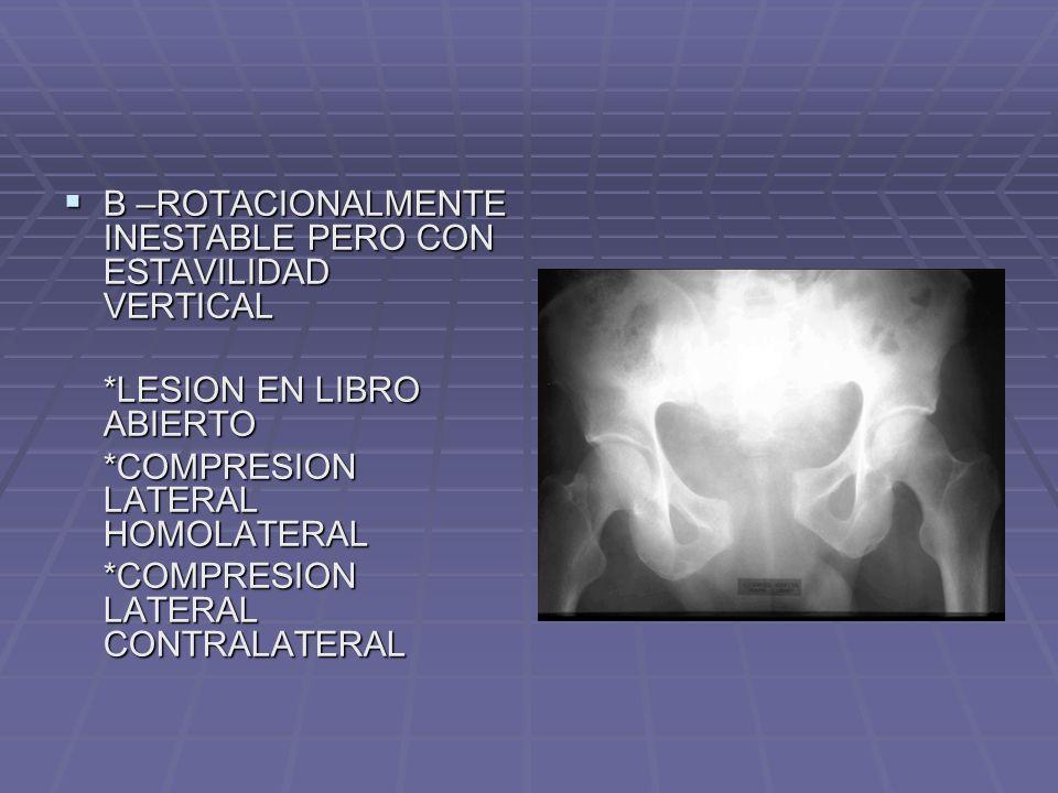 LUXACIÓN DE CADERA POSTERIORES POSTERIORES SUPERIOR (ILIACA) SUPERIOR (ILIACA) INFERIOR (ISQUIATICA) INFERIOR (ISQUIATICA) ANTERIORES ANTERIORES SUPERIOR (PÚBICA) SUPERIOR (PÚBICA) INFERIOR (OBTURATRIZ) INFERIOR (OBTURATRIZ)
