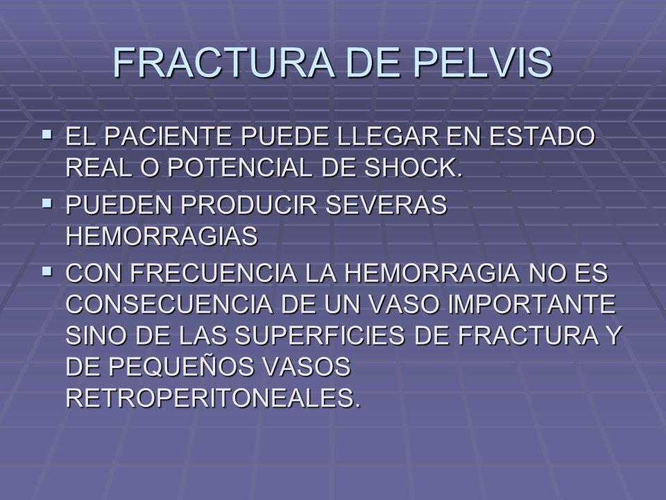 FRACTURA DE PELVIS INSPECCION: INSPECCION: *REGION LUMBAR *GLUTEA Y PERINEAL *HEMATOMAS *EQUIMOSIS EN PUBIS Y ESCROTO *SANGRE EN MEATO