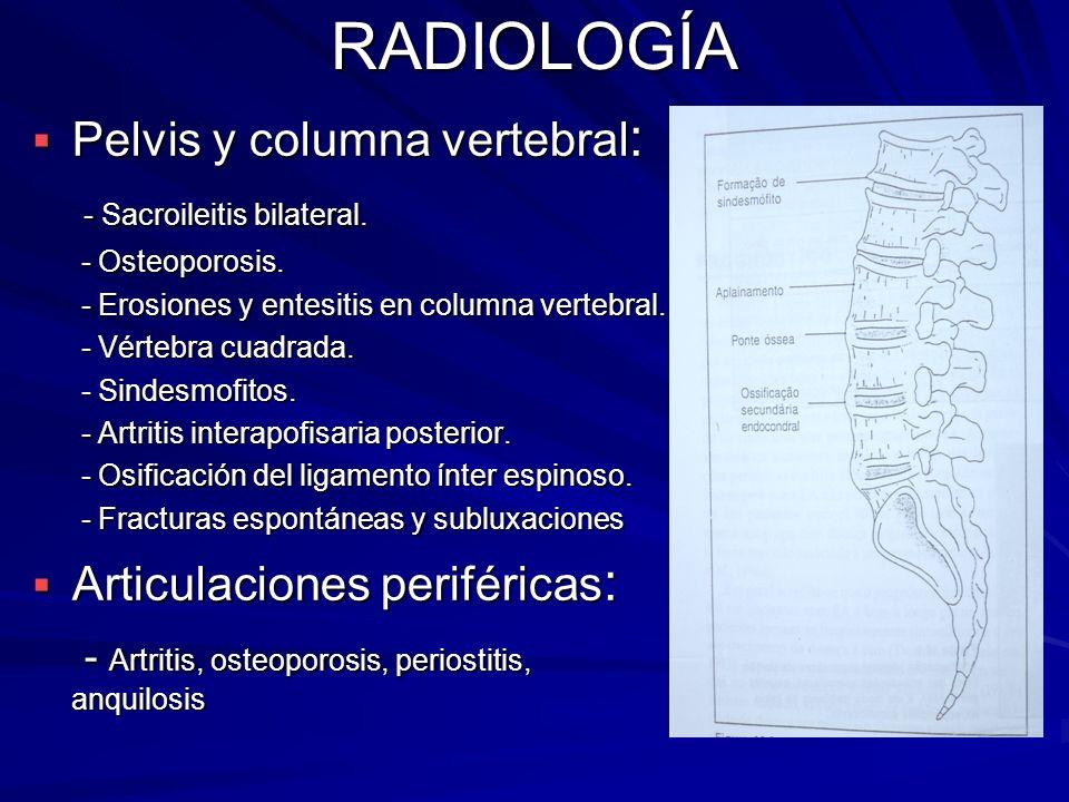RADIOLOGÍA Pelvis y columna vertebral : Pelvis y columna vertebral : - Sacroileitis bilateral. - Sacroileitis bilateral. - Osteoporosis. - Osteoporosi