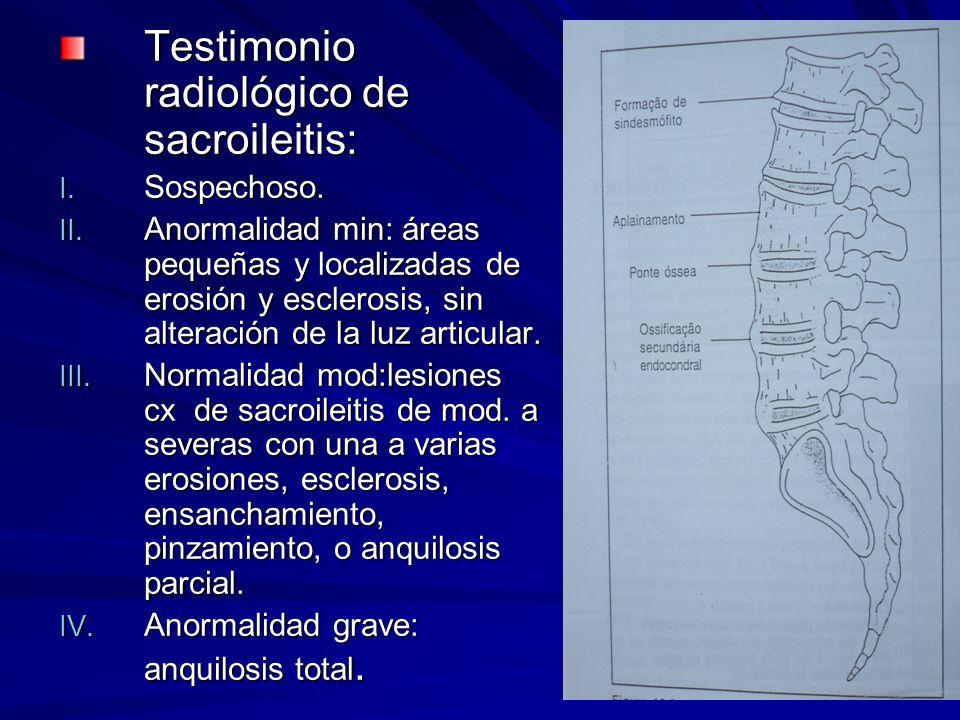 Testimonio radiológico de sacroileitis: I. Sospechoso. II. Anormalidad min: áreas pequeñas y localizadas de erosión y esclerosis, sin alteración de la