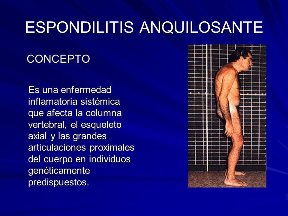 ESPONDILITIS ANQUILOSANTE CONCEPTO CONCEPTO Es una enfermedad inflamatoria sistémica que afecta la columna vertebral, el esqueleto axial y las grandes