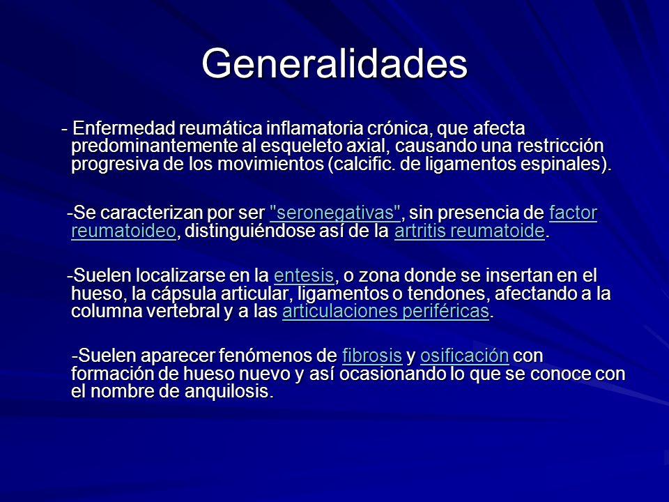 Generalidades - Enfermedad reumática inflamatoria crónica, que afecta predominantemente al esqueleto axial, causando una restricción progresiva de los
